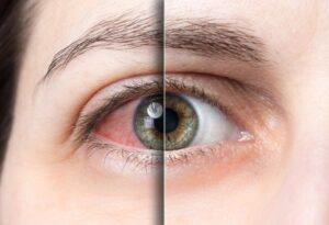 dry eye seattle